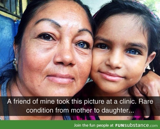 Mother and daughter with heterochromia