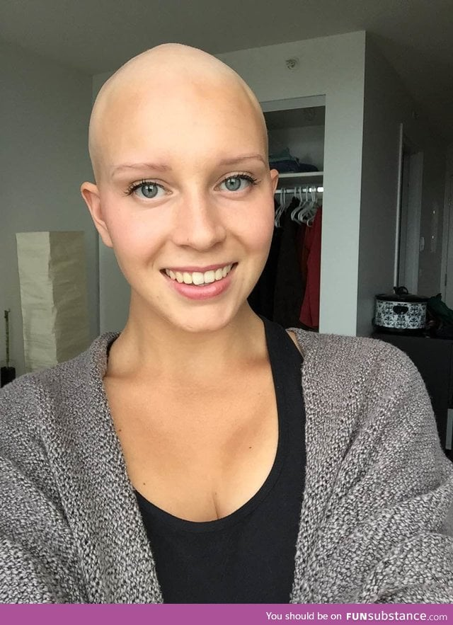 """After months of hanging onto my thinning hair, I finally let go and shaved my head"""