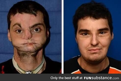 Richard Lee Norris, horribly disfigured in a shotgun accident, before and after surgery