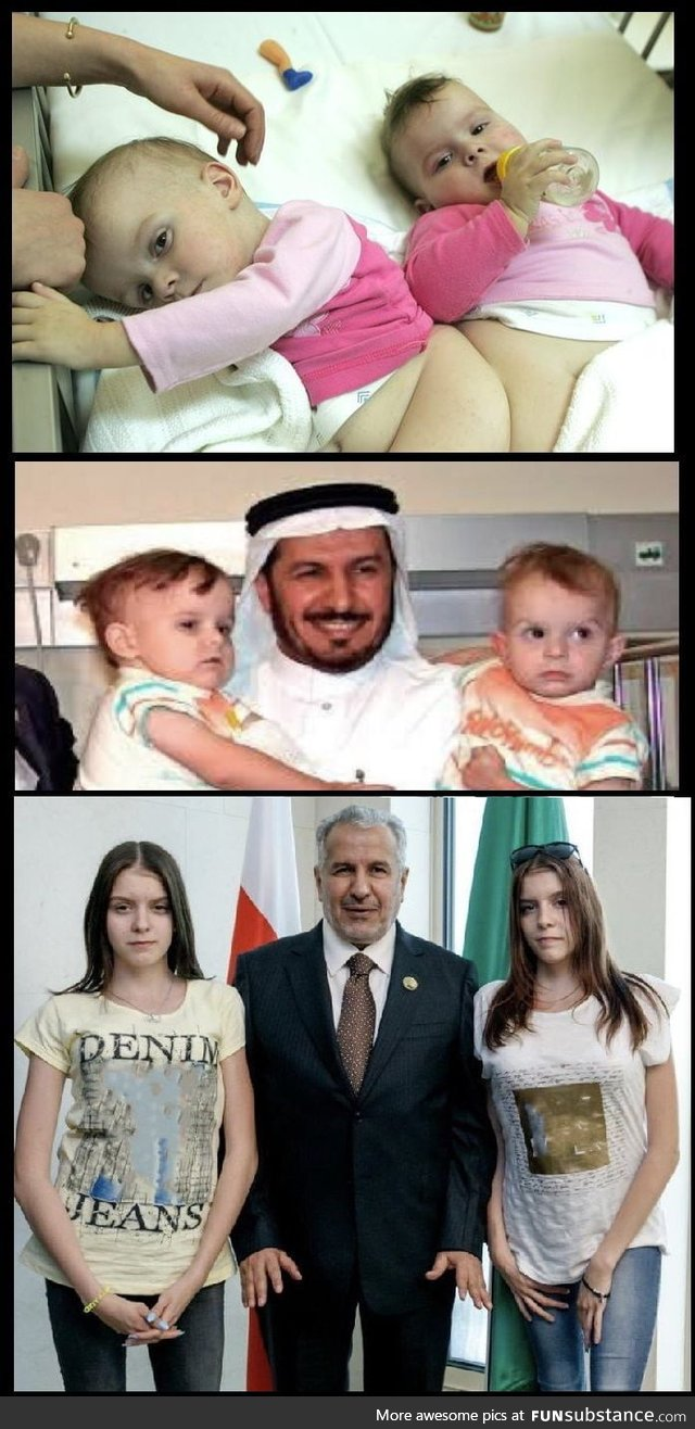 "In 2005 ""Olga and Daria"" conjoined twins from Poland went to Saudi Arabia to"