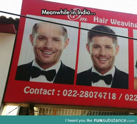 Jensen solved all his hair problems