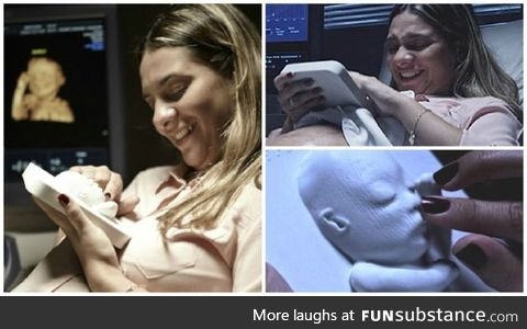 3D printed ultrasound for blind expectant mother