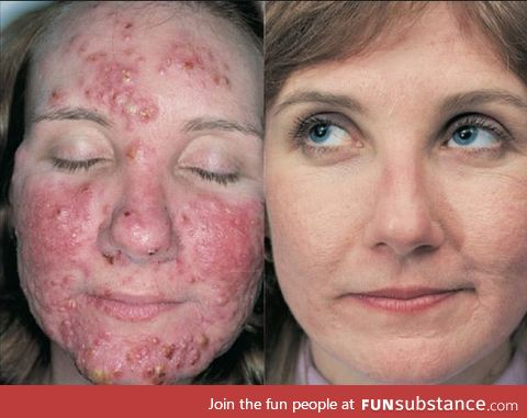 What 4 months of Isotretinoin medication for acne can do