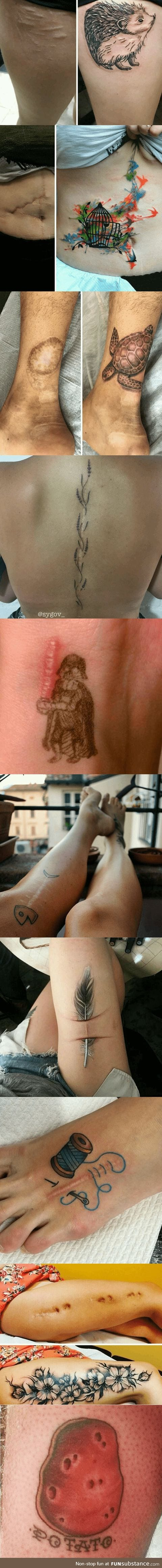 Amazing tattoos that turn scars into Works of Art