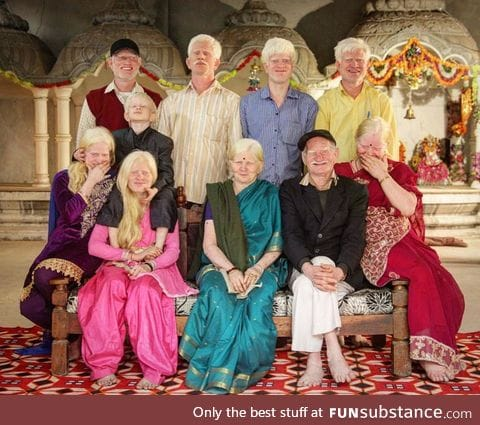 Three generations of an albino family in India