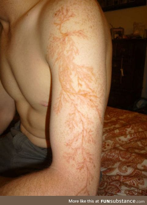 """Lichtenberg"" Scar from a lightning strike"