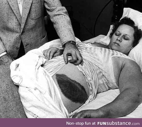 Ann Hodges. The only person in history to be struck by a meteorite. (1954)