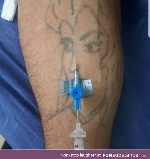 What happens when you give an ENT doctor an IV cannula