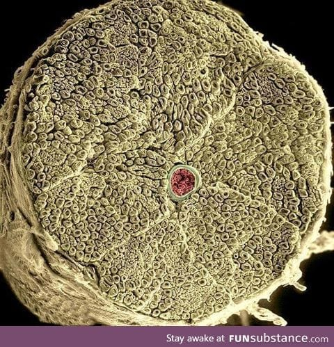 Human spinal nerve taken with electron micrograph