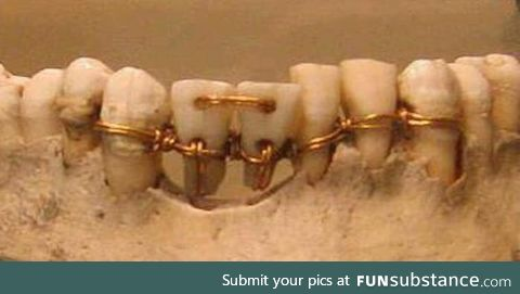 Ancient Egyptian dentistry