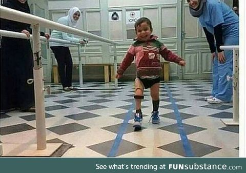 A Syrian kid after receiving a synthetic leg