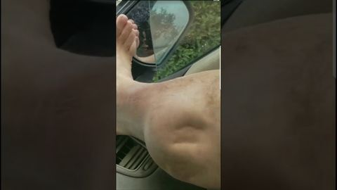 Horrible leg cramp