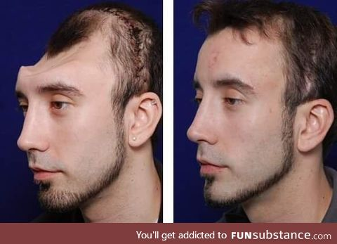 Amazing before and after of a skull reconstruction