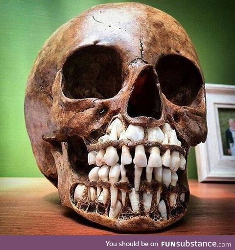 A Child's Skull, It Shows Their Baby Teeth With The Adult Teeth Above It