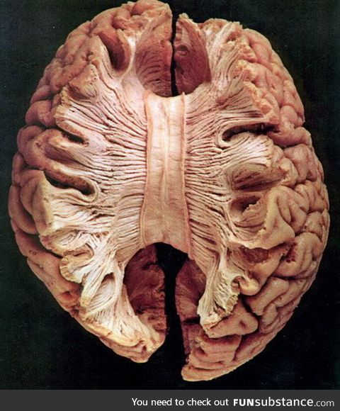 Corpus callosum- the large band of neural fibers connecting the two brain hemispheres