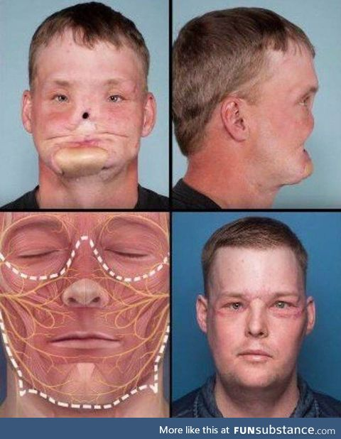 Incredible well performed face transplant