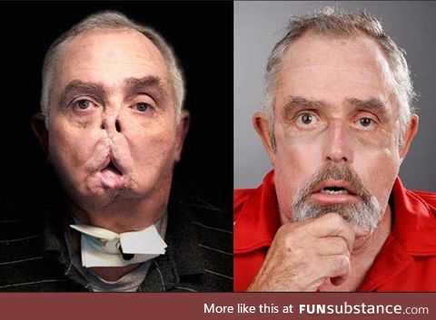 Amazing Face Transplant of Man 7 Years After Tragic Accident