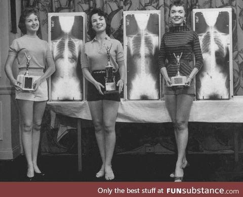 1st, 2nd and 3rd Place in the Miss Correct Posture Contest pose with their X-Rays