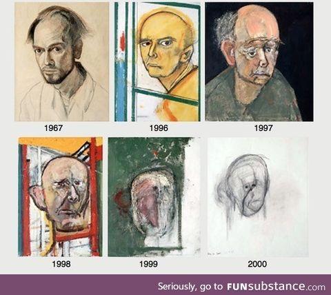 Mental deterioration with Alzheimer