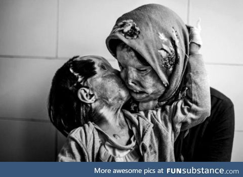 An Iranian woman & her 3 yr old daughter, disfigured from an acid attack from her husband