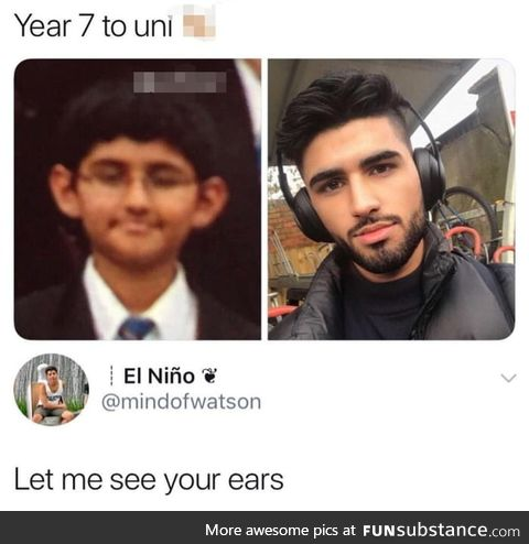 Those are his new ears