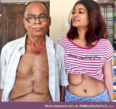 19 years old daughter donated her liver to Father