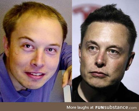 Elon Musk before and after Neuralink implants