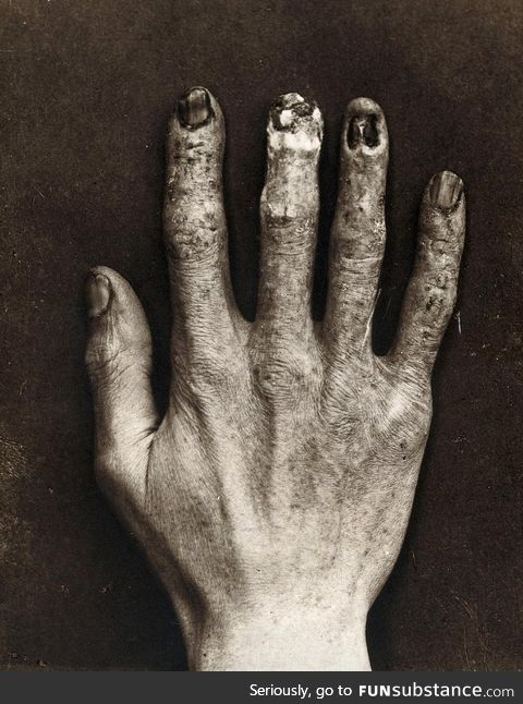A hand of a radiologist in 1900