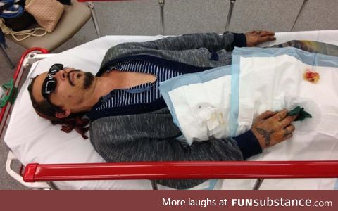Johnny Depp lying in hospital after Amber Heard severed his finger (allegedly)
