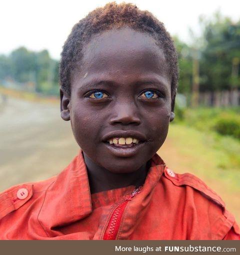 Ethiopian boy with blue eyes