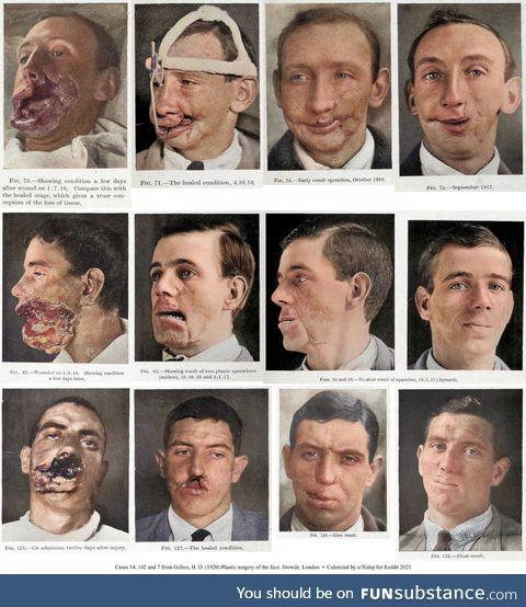 WW1 facial reconstruction, circa 1916